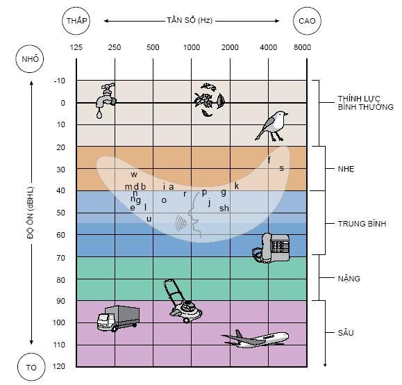 Bảng đo mức độ nghe kém chủ quan