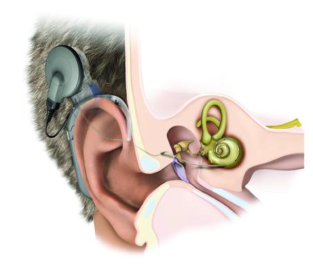 Ốc tai điện tử là phương pháp Cấy ghép một hệ thống phức tạp vào bên trong tai