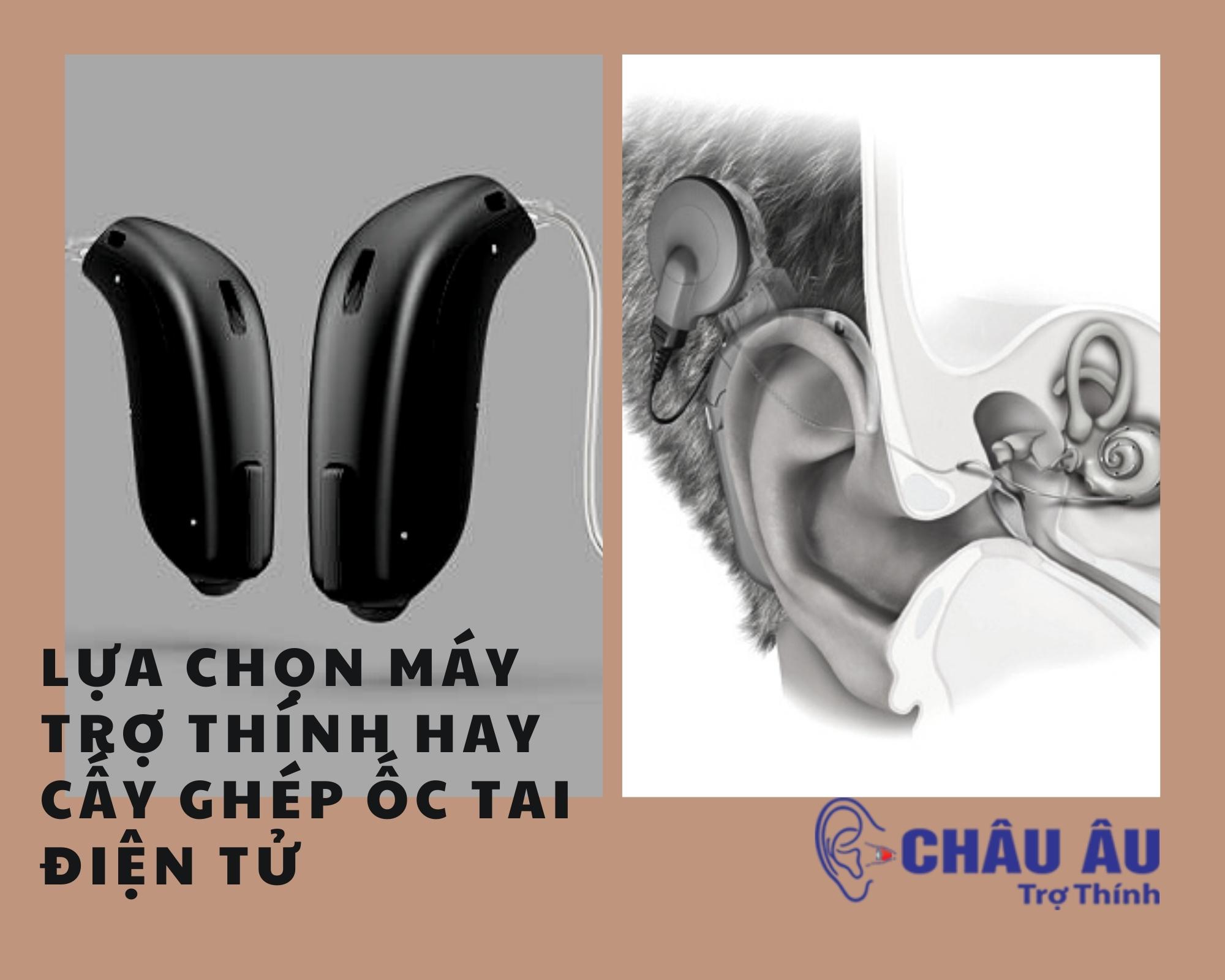 Lựa chọn máy trợ thính hay cấy ghép ốc tai điện tử
