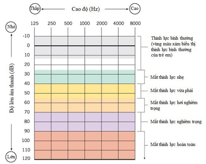 Đọc kết quả đo thính lực đồ