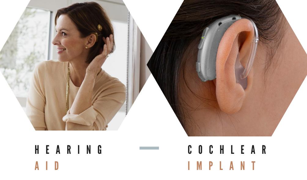 Lựa chọn máy trợ thính hay cấy ốc tai điện tử