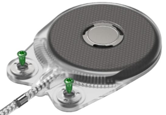 Hệ thống vít Titanium cố định độc đáo