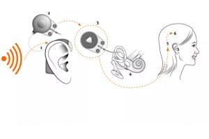 Các trường hợp chỉ định cấy ốc tai điện tử