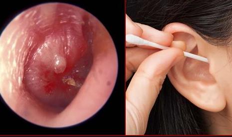 Nhiễm trùng tai do sử dụng tăm bông